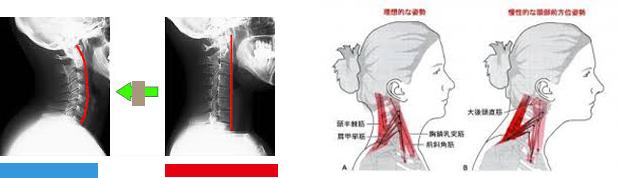 肩 甲骨 の あいだ が 痛い 肩甲骨、背中のツボ5点・自分でコリをとる方法